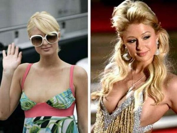 before-and_after_breast_enlargement_07.jpg