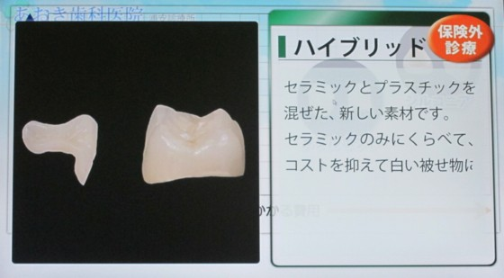 Japanese dentist2