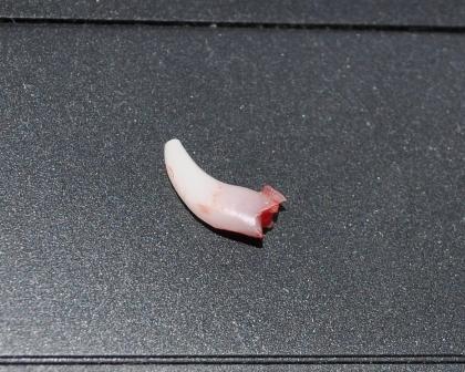 大きい歯です・・・まさか永久歯じゃあないよね。