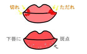 唇の症状 2