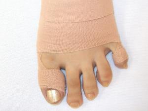 大阪市旭区しおかわ鍼灸整骨院外反母趾専門治療外反母趾テープ後の写真です。