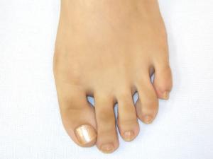 大阪市旭区しおかわ鍼灸整骨院外反母趾専門治療外反母趾テープ前の写真です。
