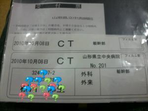 CTスキャン