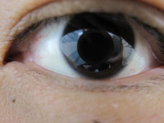 検査で瞳孔が開いた目