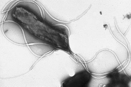 Helicobacter pylori S1