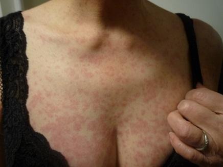 薬害発疹S2