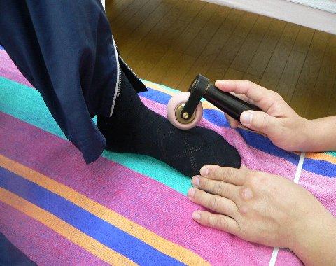 足の抹消をビューティーで治療