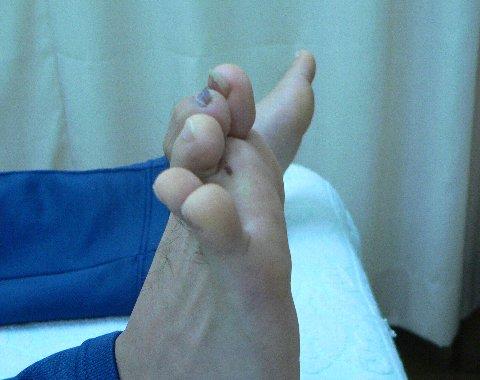 髄内釘手術術後