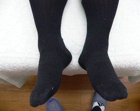 治療前の下肢の長さの違い
