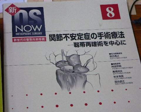 関節不安定症候群の手術の仕方の本