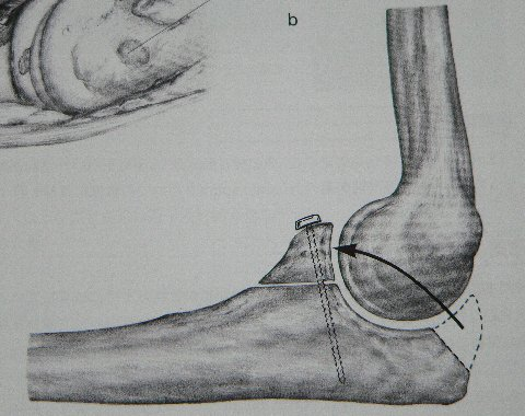 肘関節脱臼の手術・?