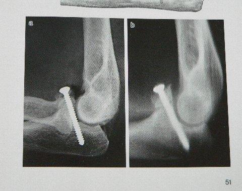 肘関節脱臼の手術痕