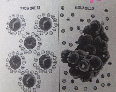 ベタベタの赤血球