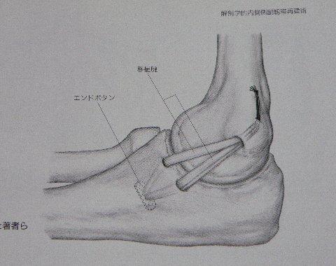肘関節尺側々靭帯再腱術