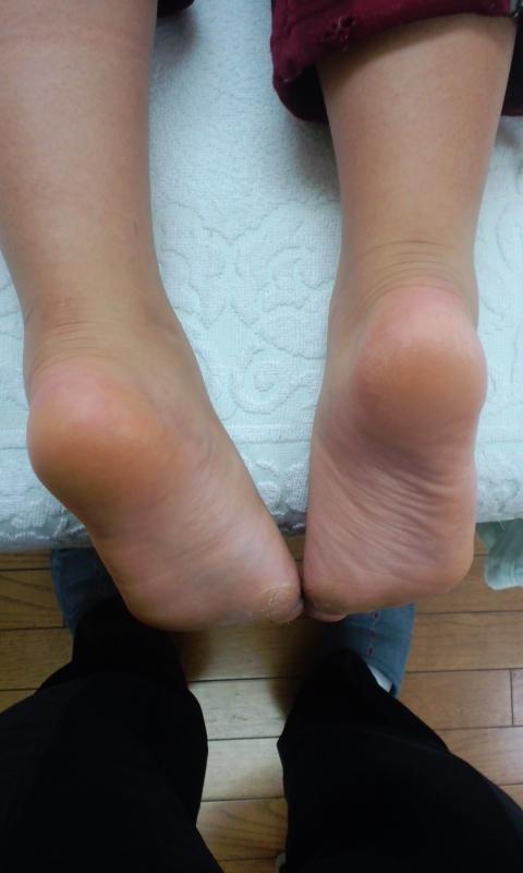 下肢の長短