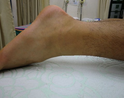 治療前の足首