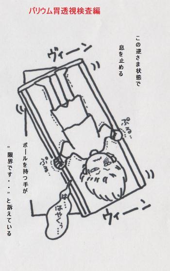 がん検診(バリウム胃透視編)