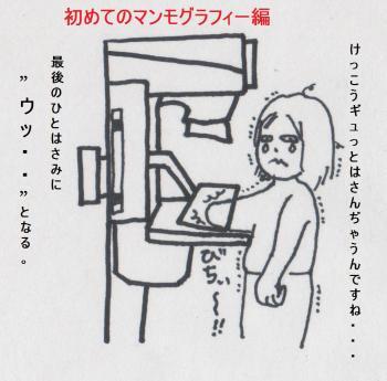 がん検診(マンモグラフィー編)