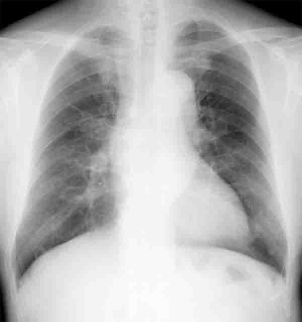 051月11日 胸部単純写真