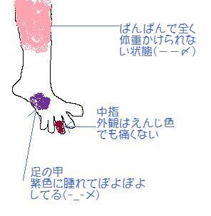 12月5日息子の足