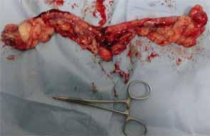 犬の膣の腫瘤5