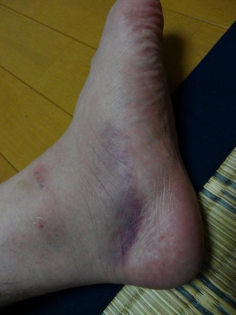 悠太郎の左足首 負傷二日目
